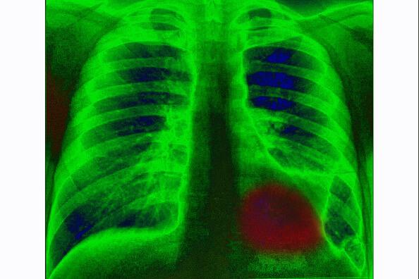 En México el cáncer de pulmón es la primea causa de muerte por tumores malignos en la población. (Getty images, archivo)