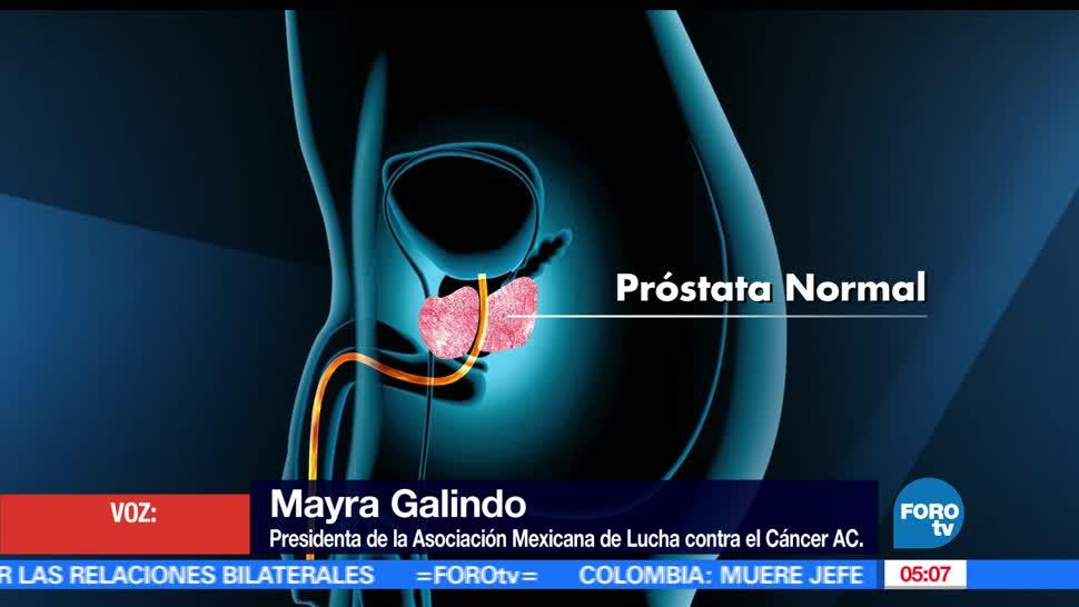 cada día mueren 17 hombres, Cáncer, próstata, México