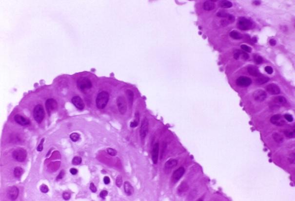 Criptosporidiosis, Sida, VIH, Enfermedad, Cura, Infeccion