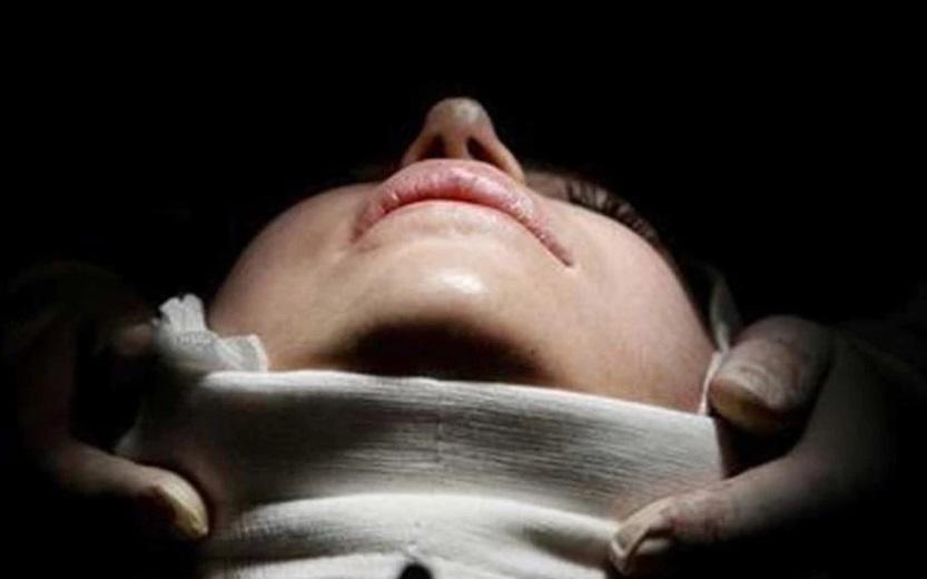 imagen mujer somete cirugia plastica china
