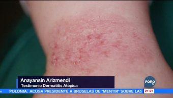 Aumentan casos de dermatitis atópica por frío
