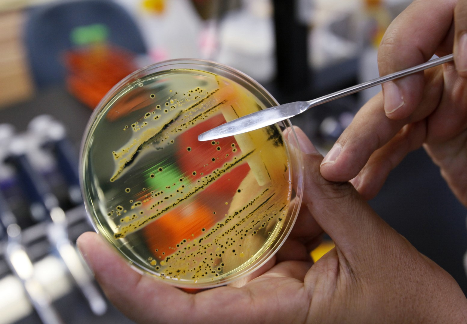 Bacterias resistentes a los antibióticos amenazan la salud