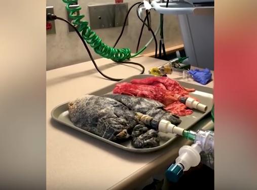 Video muestra cancer pulmonar pulmon sano pulmon con cancer