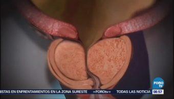 Conozca los síntomas del agrandamiento de la próstata