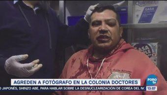 Agreden Fotógrafo Colonia Doctores