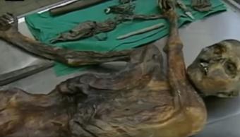 Ötzi Momia Antigua Estómago Grasa Estudio