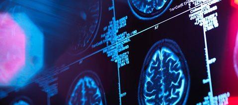 Alzheimer aqueja a miles de capitalinos y sigue aumentando