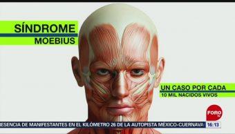 Síndrome de Moebius, sin movilidad facial