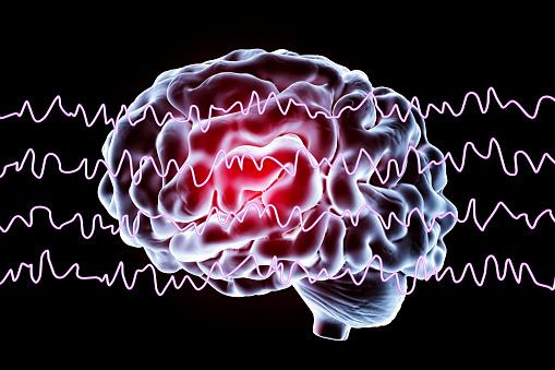 foto La disautonomía afecta al sistema nervioso central