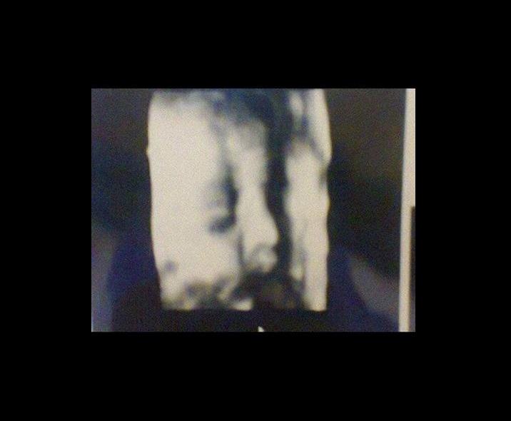 Médico engaña a pacientes embarazadas con la misma ecografía