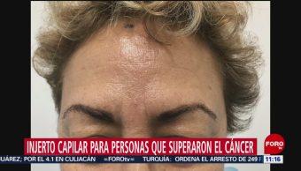 Personas que superaron el cáncer podrían recibir injerto en cejas