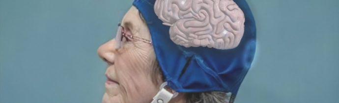 Foto: Casco Revierte Deterioro Provocado Alzheimer 25 Septiembre 2019