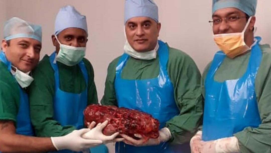 Foto: Extraen riñón de siete kilos a paciente en India