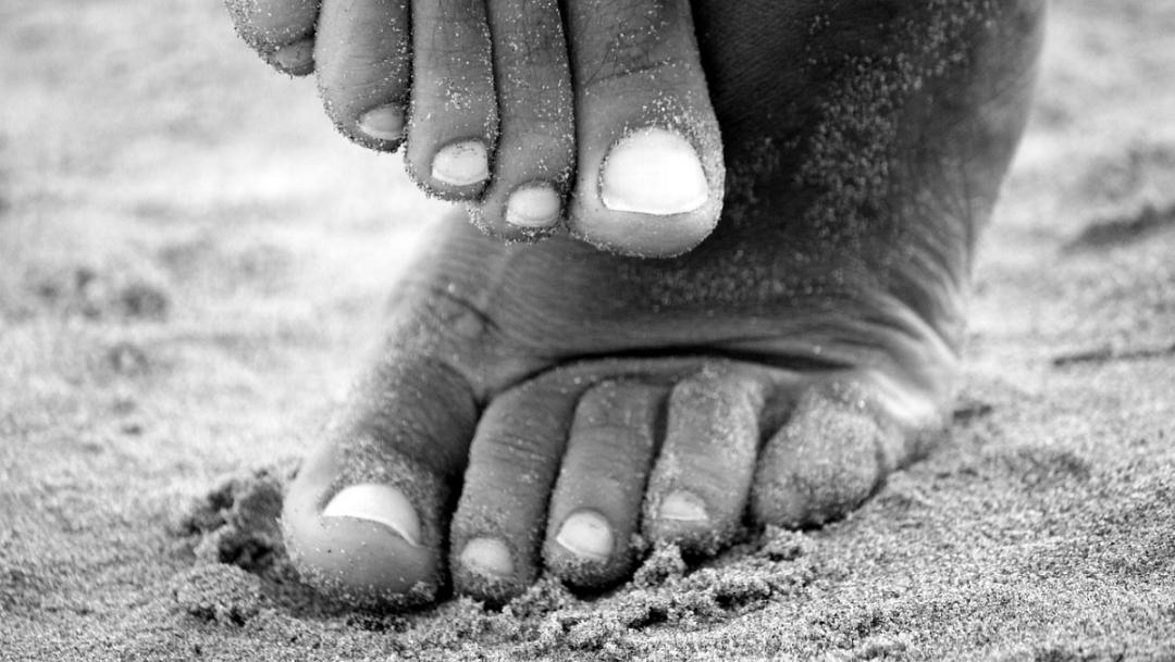 Hongos en las uñas: conoce sus síntomas y tratamientos