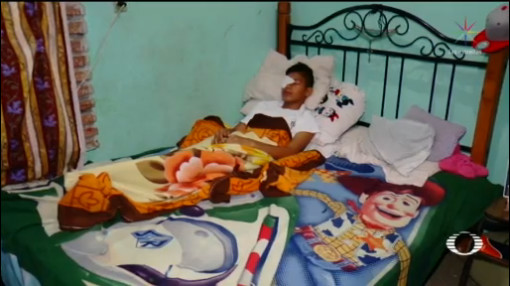 Foto: Menor Perder Ojo Bullying Chiapas 11 Diciembre 2019