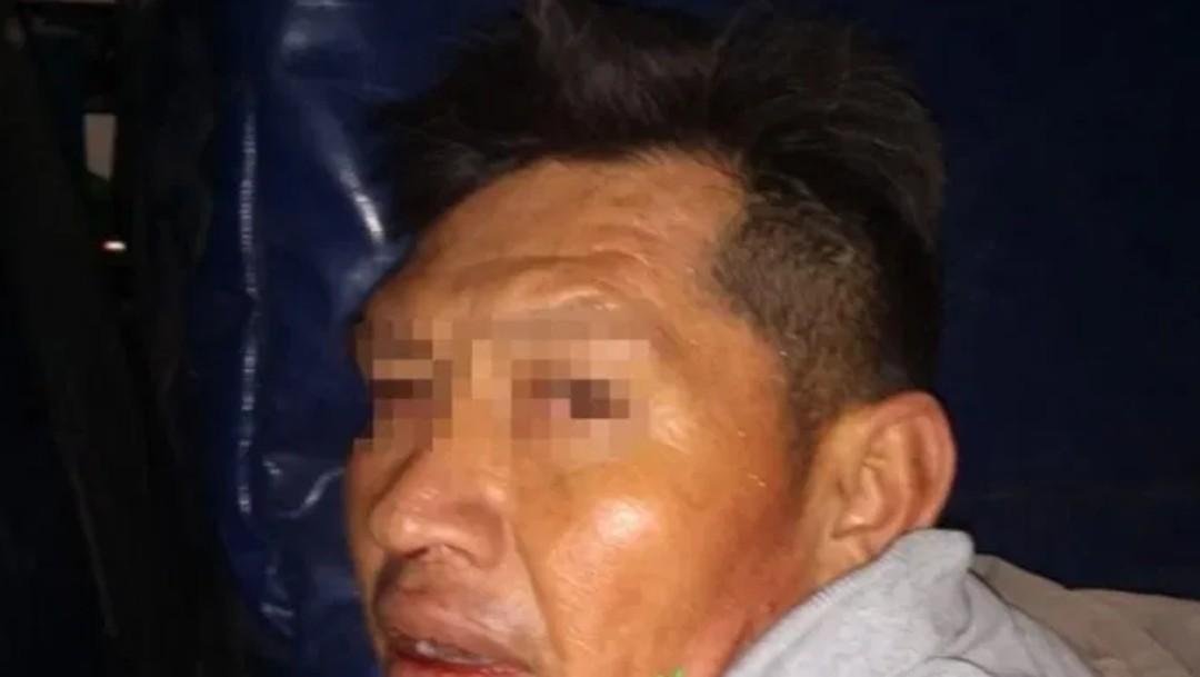 Foto: Hombre acuchilla a dos policías en Coyoacán