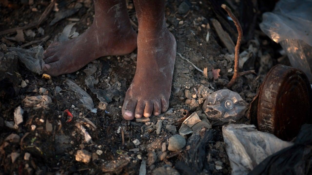 Desnutrición infantil podría aumentar en Haití por COVID-19, señala UNICEF