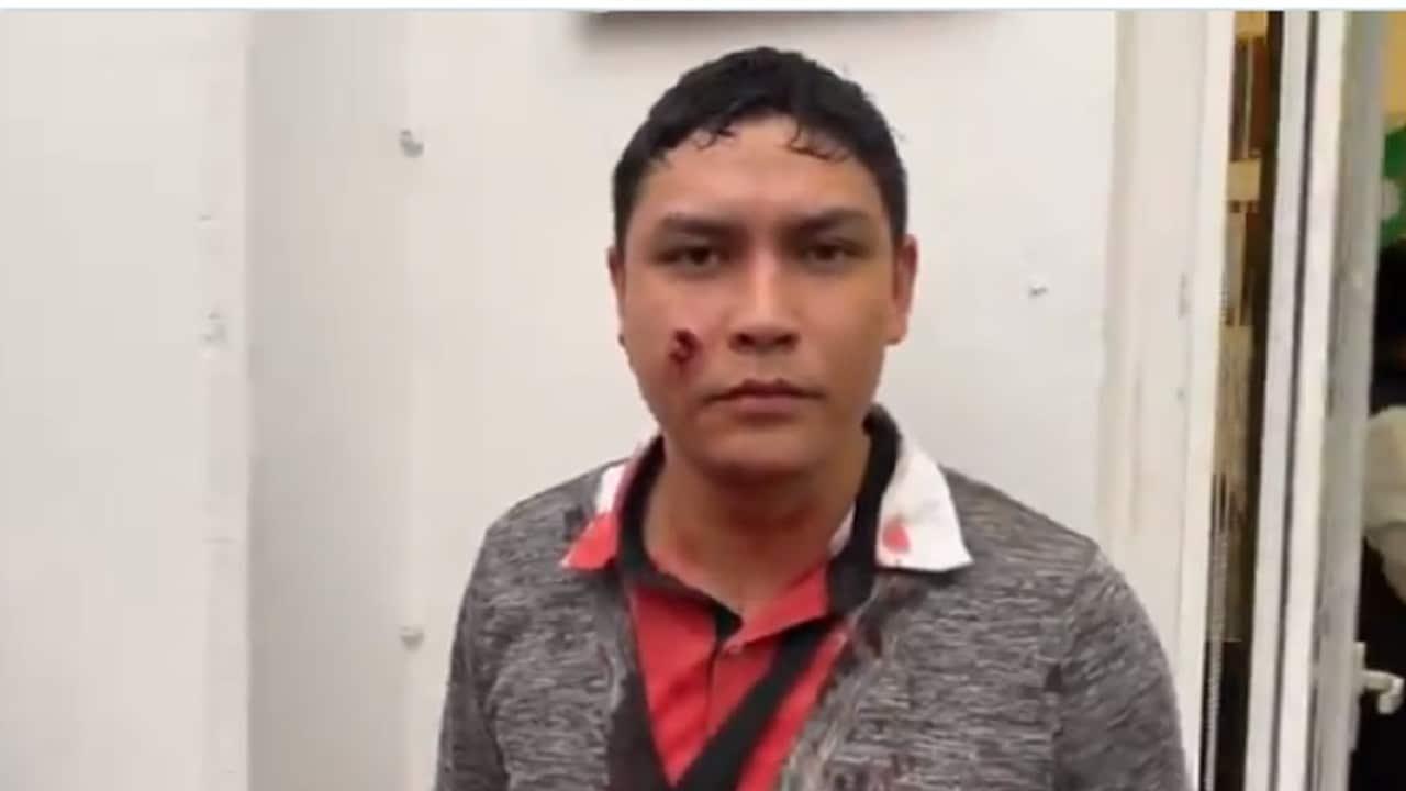 Militante del PRI lesionado narra agresión