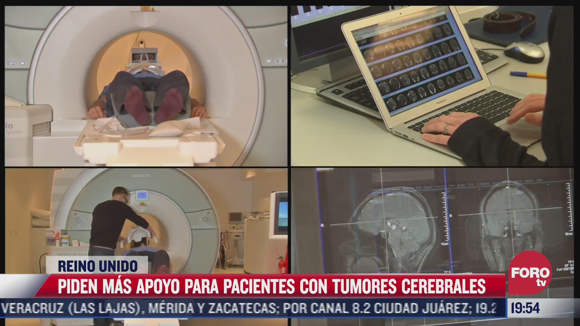 piden mas apoyo para pacientes con tumores cerebrales en reino unido
