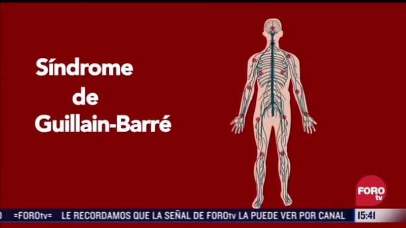 El síndrome de Guillain-Barré