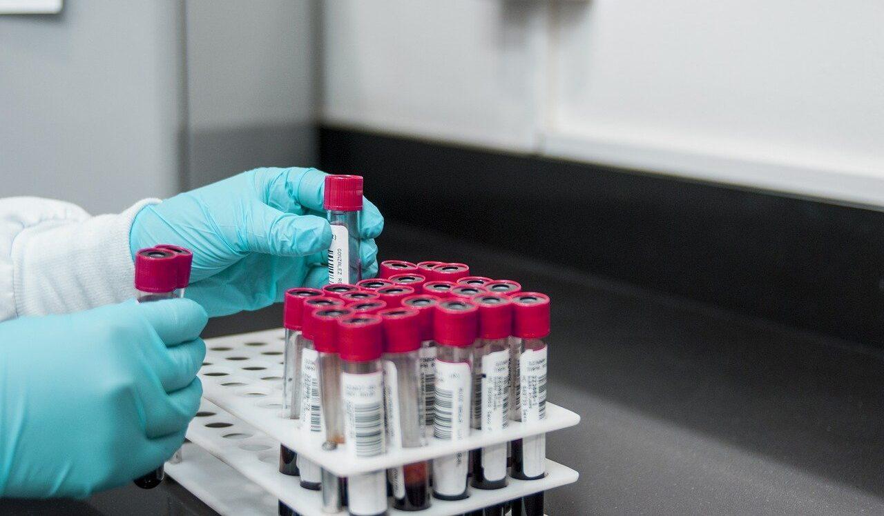 Fenofibrato, el medicamento que podría reducir infección del covid en 70% según estudio