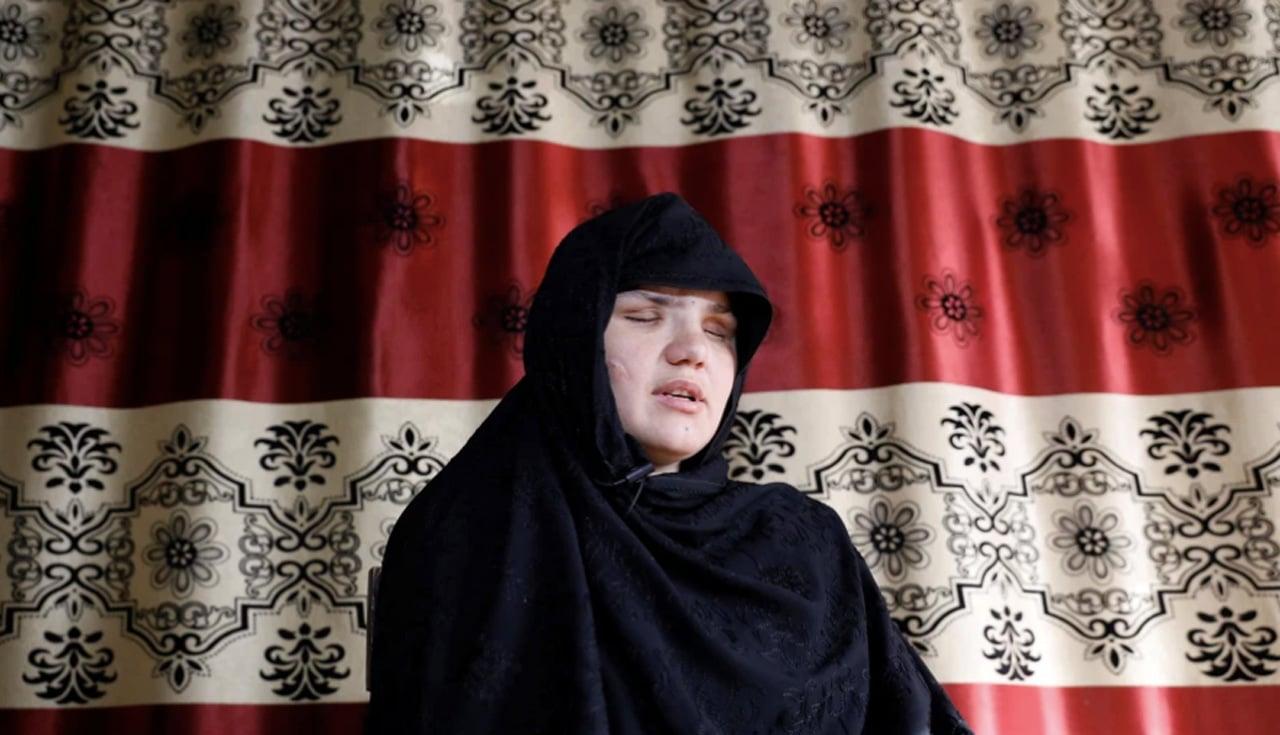 Khatera fue apuñalada en los ojos por los talibanes en Afganistán